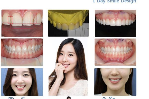 11 seoul guide medical dental patients (43)
