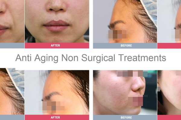 17 skin care before and after anti aging seoul guide medical