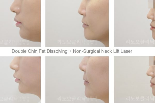 20 skin care before and after non surgical double chin fat dissolving and non surgical neck lift seoul guide medical