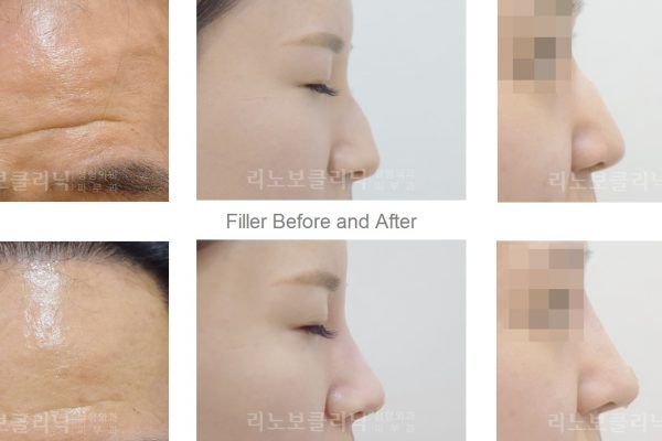 21 skin care before and after filler seoul guide medical
