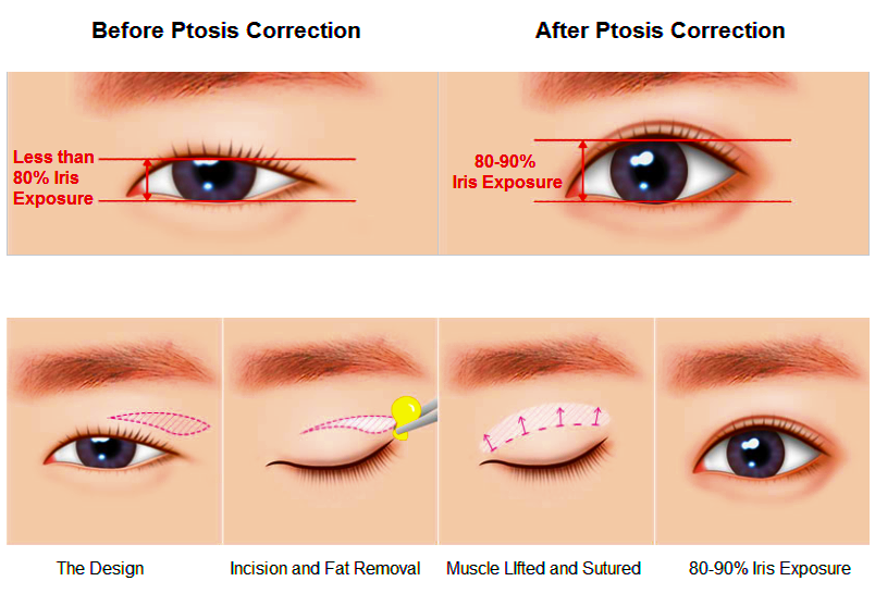 53 Most Popular Plastic Surgery Procedures In Korea - Seoul Guide