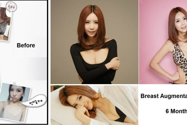 10 breast augmentation via implants before and after seoul guide medical
