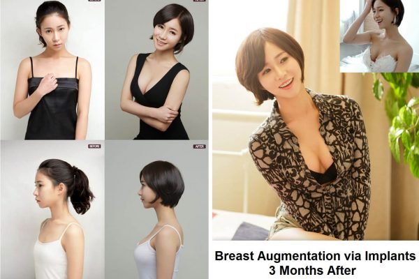 breast augmentation in korea