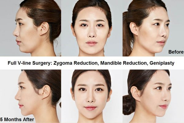 11 face contouring seoul guide medical before and after