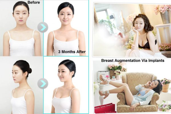 12 breast augmentation via implants before and after seoul guide medical