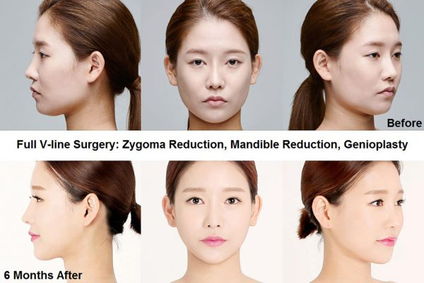 12 face contouring seoul guide medical before and after