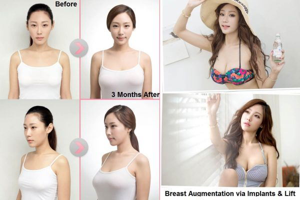 13 breast augmentation via implants and lift before and after seoul guide medical