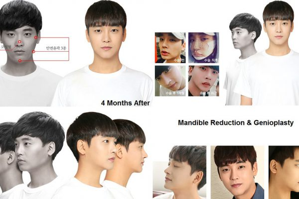 male plastic surgery in korea