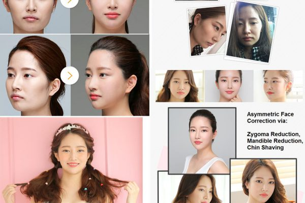 14 face contouring seoul guide medical before and after zygoma reduction, mandible reduction, chin shaving