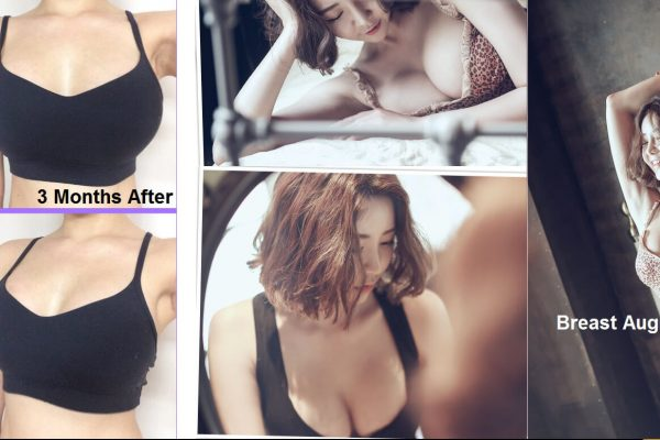 15 breast augmentation via implants before and after seoul guide medical