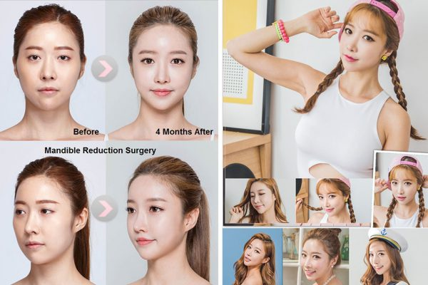 15 face contouring seoul guide medical before and after madible reduction surgery