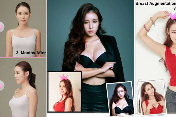 16 breast augmentation via implants before and after seoul guide medical