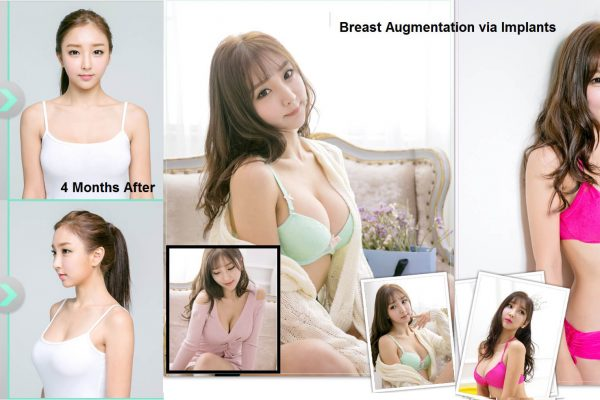 17 breast augmentation via implants before and after seoul guide medical