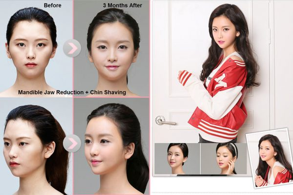 17 face contouring seoul guide medical before and after madible reduction surgery and chin shaving