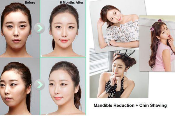 18 face contouring seoul guide medical before and after madible reduction surgery and chin shaving