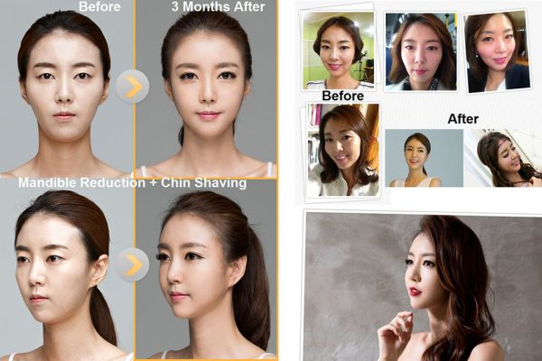 19 face contouring seoul guide medical before and after mandible reduction plus chin shaving
