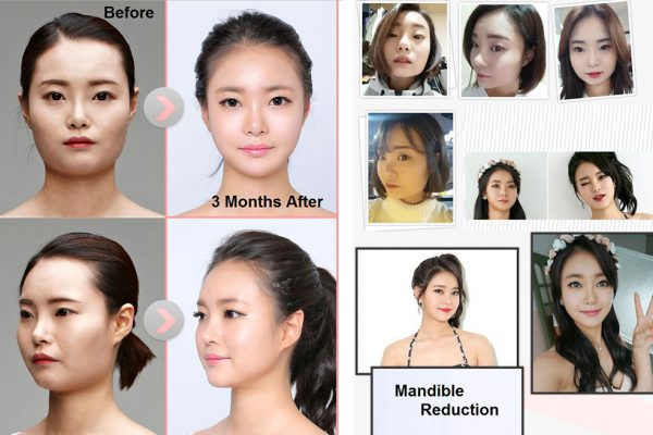 20 face contouring seoul guide medical before and after mandible reduction plus chin shaving