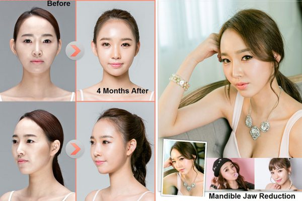 21 face contouring seoul guide medical before and after mandible reduction plus chin shaving