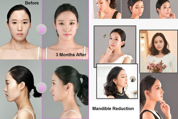 22 face contouring seoul guide medical before and after mandible reduction