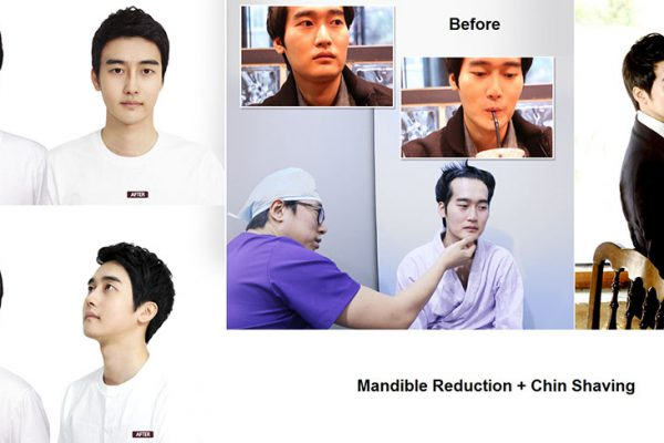 25 face contouring seoul guide medical before and after mandible reduction male plus chin shaving