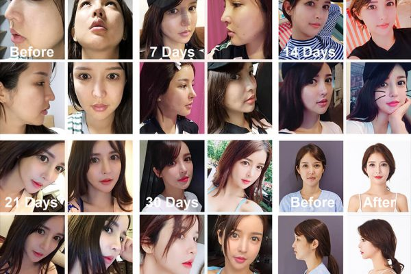 4 Irene Rhinoplasty Before Photo Seoul Guide Medical full