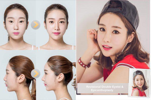 Jane bigger eyes seoul guide medical