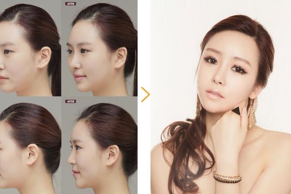 Nana Rhinoplasty before and after 1 seoul guide medical full