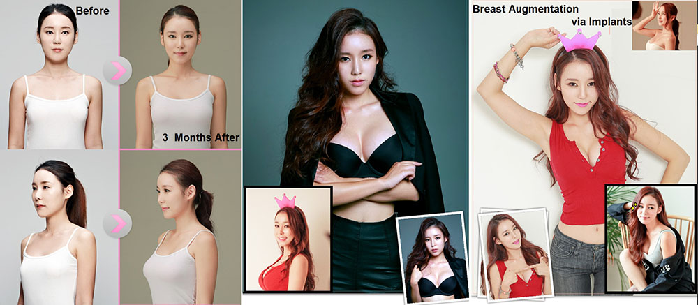 breast augmentation and implants in seoul, korea at dodream plastic surgery