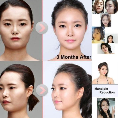 v line surgery korea before and after
