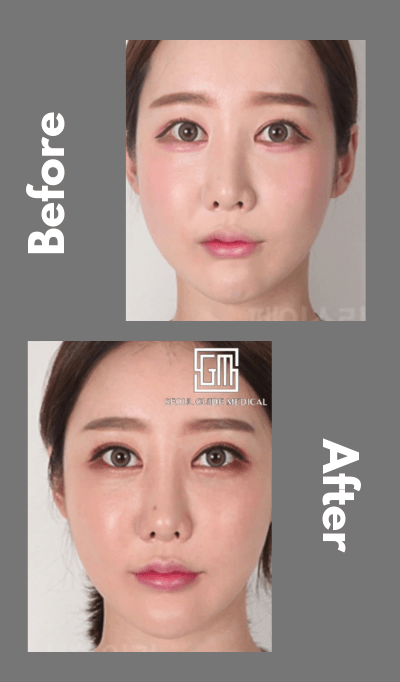 seoul guide medical revision double eyelid surgery before and after
