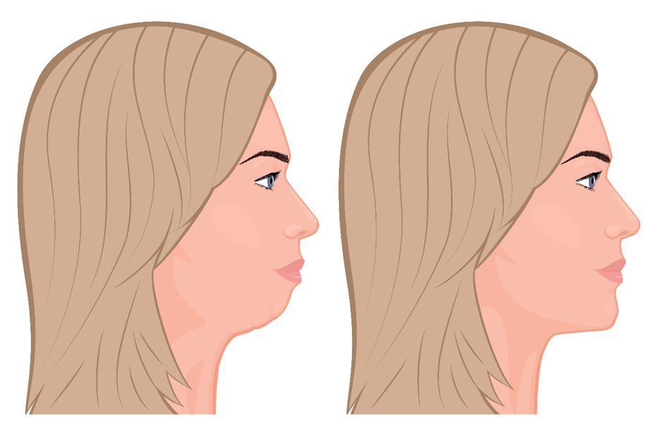 chin implant explain before and after