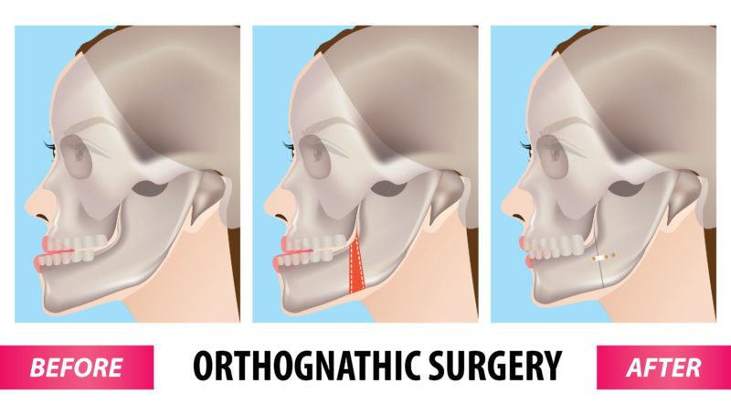 orthognathic surgery procedure