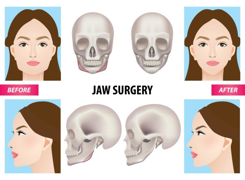jaw surgery procedure and before and after