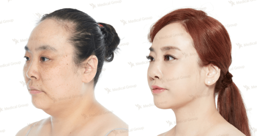 cheek fat eduction before and after