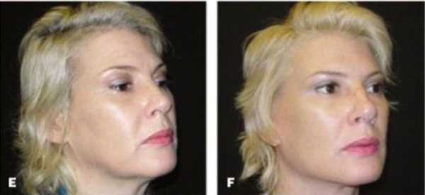 jaw implants after surgery