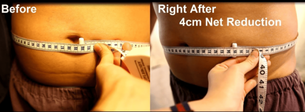 Non-Surgical liposuction before and after treatment