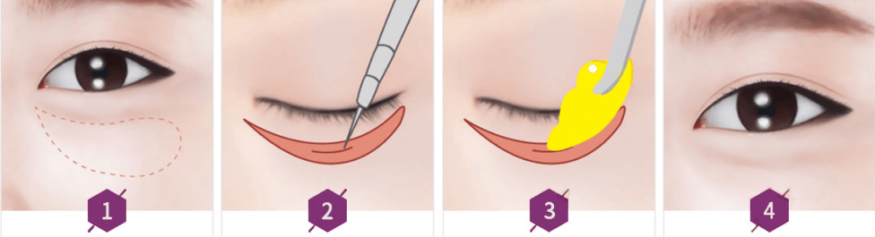 Lower Blepharoplasty procedure