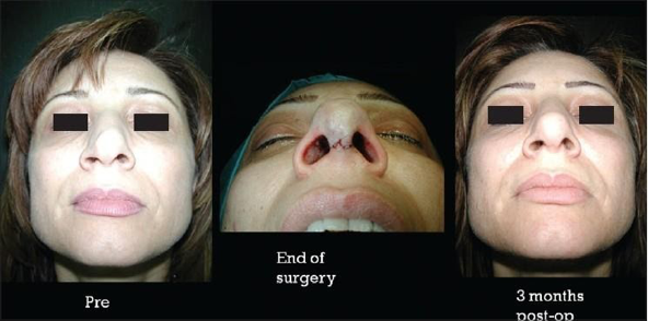 how nose job done